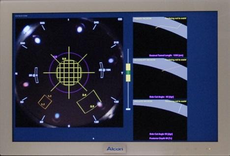Laser Femtocataract
